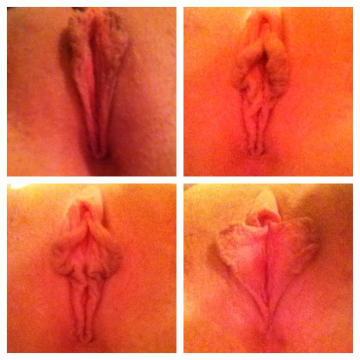 Four pictures of vulvas with differently sized and shaped labia.